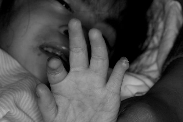 她的手——記罕見疾病女孩小婷 文、攝影/吳志浩